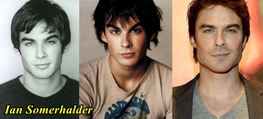 Ian Somerhalder Plastic Surgery Before and After
