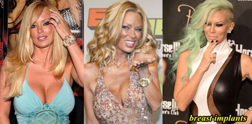 Jenna Jameson Breast Implants