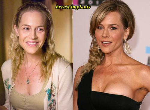 Julie Benz Plastic Surgery Breast Implants