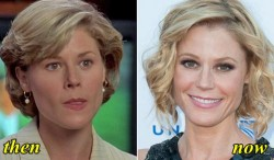 Julie Bowen Plastic Surgery Before and After