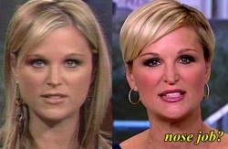 Juliet Huddy Plastic Surgery Before and After Nose Job