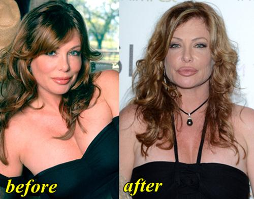 Kelly LeBrock Plastic Surgery Before and After