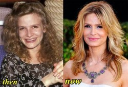 Kyra Sedgwick Plastic Surgery Before and After