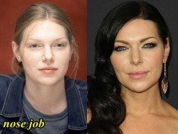 Laura Prepon Plastic Surgery Nose Job