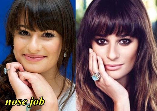 Lea Michele Nose Job