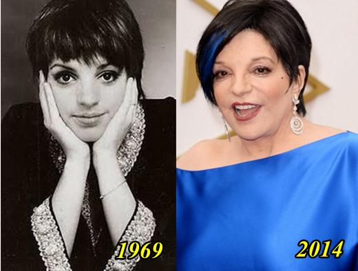 Liza Minnelli Plastic Surgery Before and After