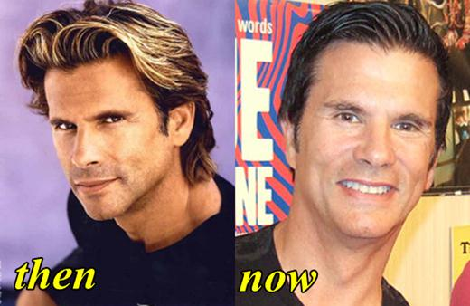Lorenzo Lamas Plastic Surgery Before and After