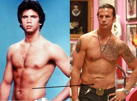 Lorenzo Lamas Plastic Surgery Liposuction