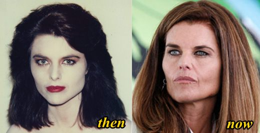 Maria Shriver Plastic Surgery Before and After
