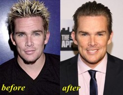 Mark McGrath Plastic Surgery Before and After