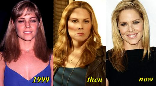 Mary McCormack Plastic Surgery Before and After
