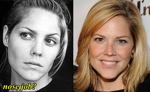 Mary McCormack Plastic Surgery Nose job