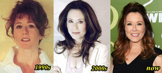Mary McDonnell Plastic Surgery Before and After