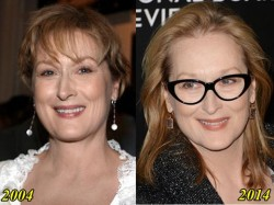 Maryl Streep Plastic Surgery