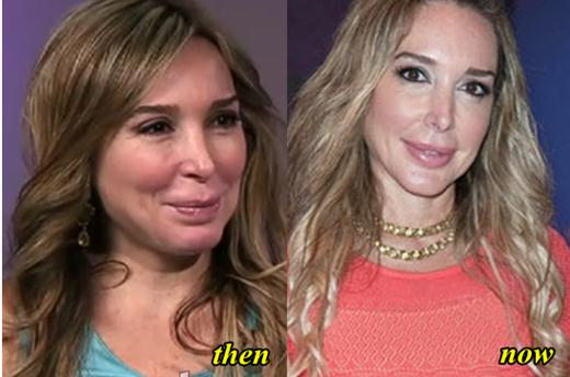 Marysol Patton Plastic Surgery Before and After