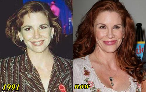 Melissa Gilbert Plastic Surgery Before and After