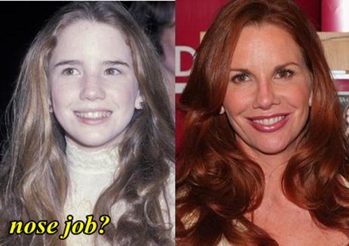 Melissa Gilbert Plastic Surgery Nose Job