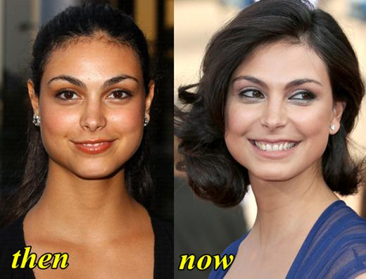 Morena Baccarin Plastic Surgery Before and After