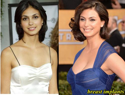 Morena Baccarin Plastic surgery Breast Implants