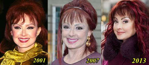 Naomi Judd Plastic Surgery Before and After