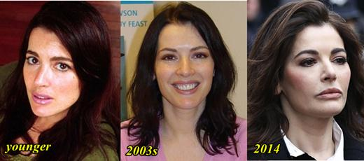 Nigella Lawson Plastic Surgery Before and After