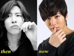 No Min Woo Plastic Surgery Before and After Nose Job