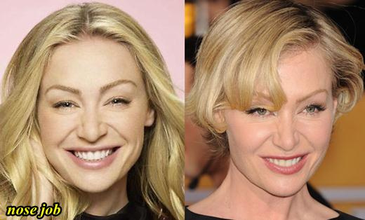 Portia De Rossi Nose Job