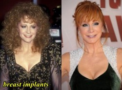 Reba McEntire Breast Implants