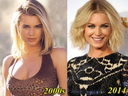 Rebecca Romijn Plastic Surgery Before and After