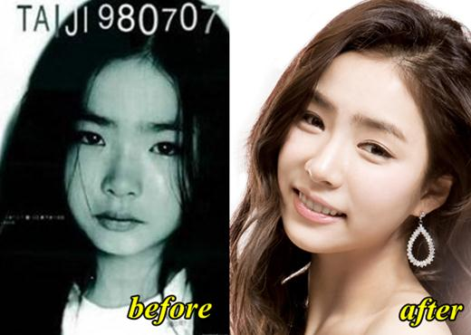 Shin Se Kyung Plastic Surgery Before and After