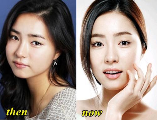 Shin Se Kyung Plastic Surgery Fact or Rumor