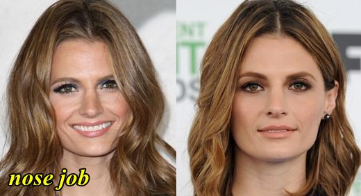 Stana Katic Nose Job Plastic Surgery