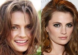 Stana Katic Plastic Surgery