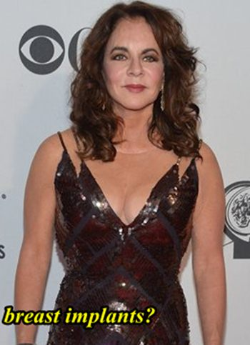 Stockard Channing Breast Implants