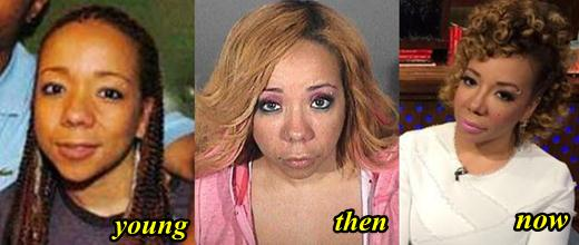 Tameka Cottle Plastic Surgery Before After