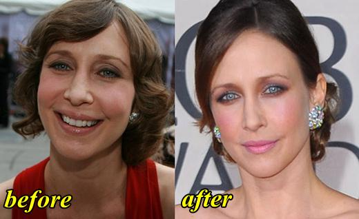 Vera Farmiga Plastic Surgery Before and After