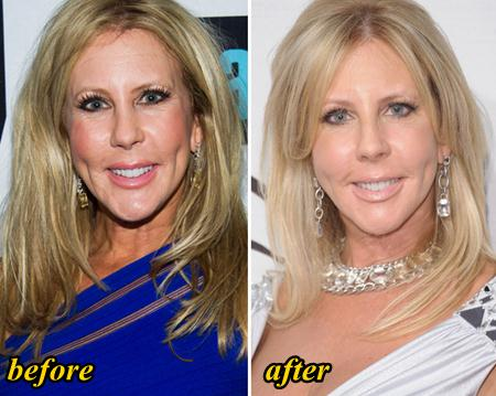 Vicki Gunvalson Plastic Surgery Before and After