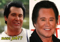Wayne Newton Plastic Surgery Nose job