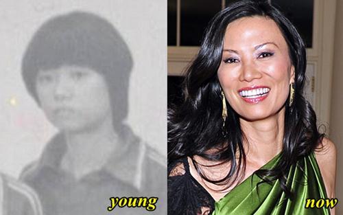 Wendi Deng Plastic Surgery