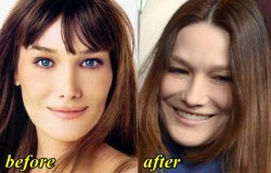 Carla Bruni Plastic Surgery
