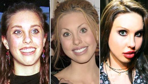 Chloe Lattanzi Plastic Surgery
