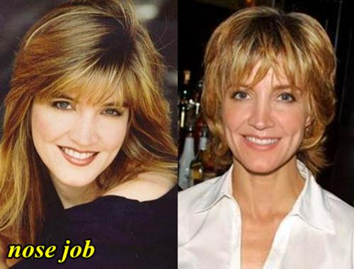 Crystal Bernard Plastic Surgery Nose Job