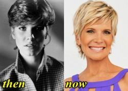 Debby Boone Facelift