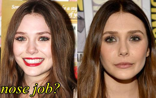elizabeth olsen nose job before and after plastic surgery