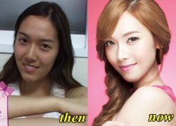 Former SNSD Jessica Jung Plastic Surgery