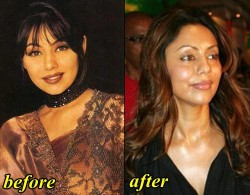 Gauri Khan Plastic Surgery