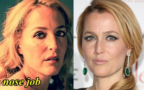 Gillian Andeson Nose Job