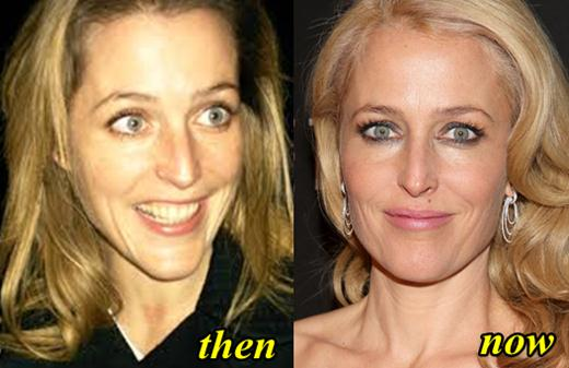 Gillian Andeson Plastic Surgery