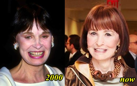 Gloria Vanderbilt Plastic Surgery Before and After