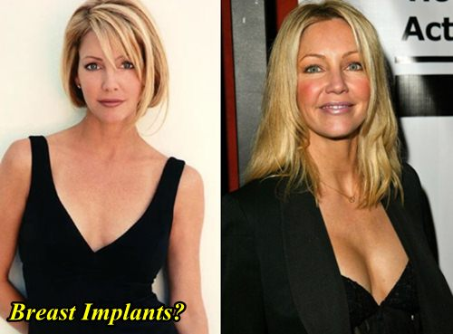 Heather Locklear Breast Implants